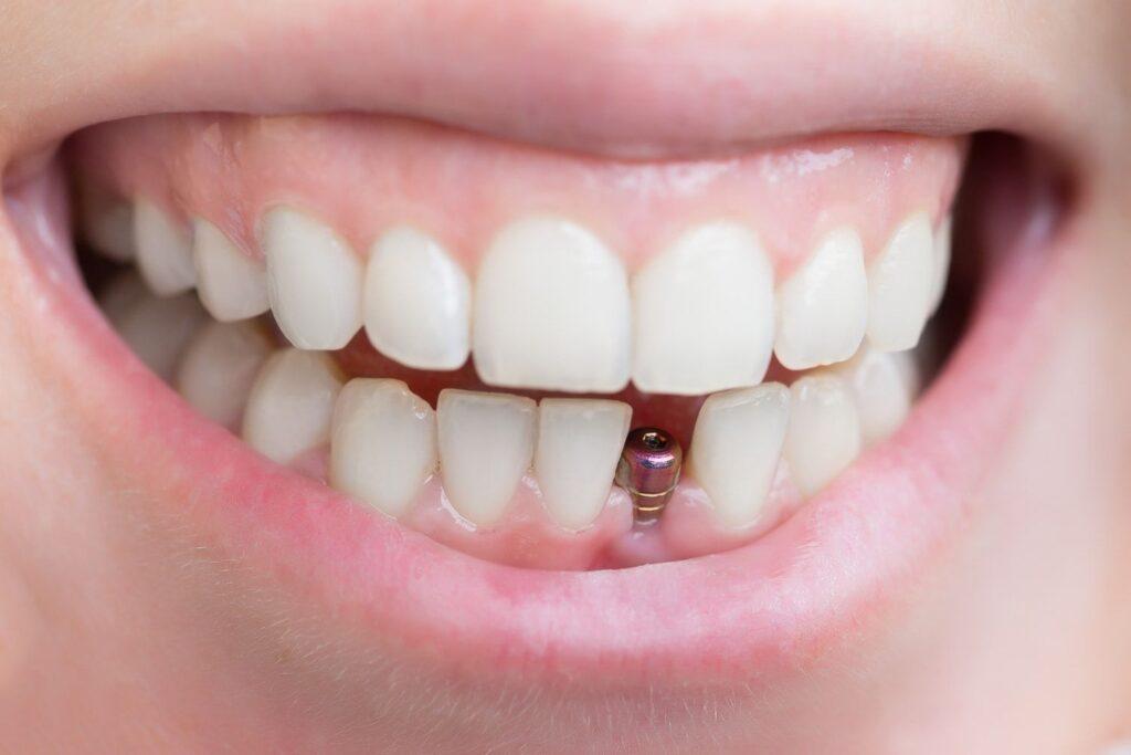 مراحل ایمپلنت فوری دندان