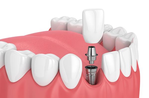 بهترین ایمپلنت دندان کره ای