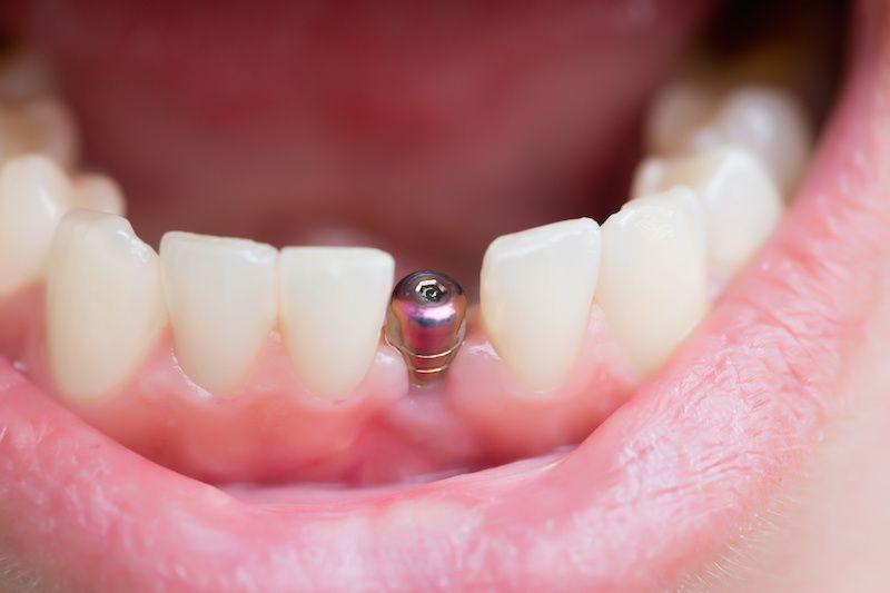 موفقیت ایمپلنت دندان
