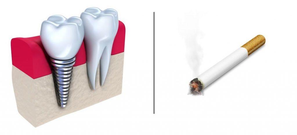 سیگار و ایمپلنت