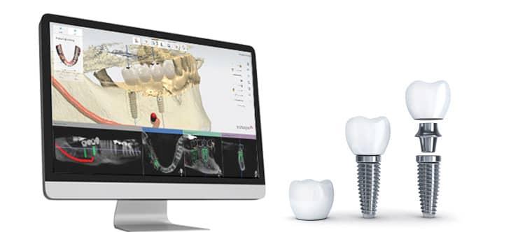 کاشت دندان دیجیتال