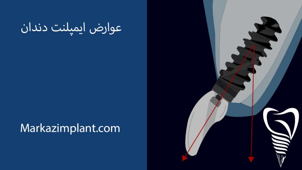 عوارض ایمپلنت دندان چیست ؟