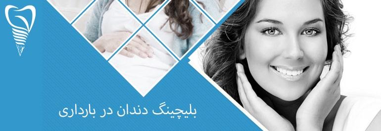 بلیچینگ دندان در بارداری