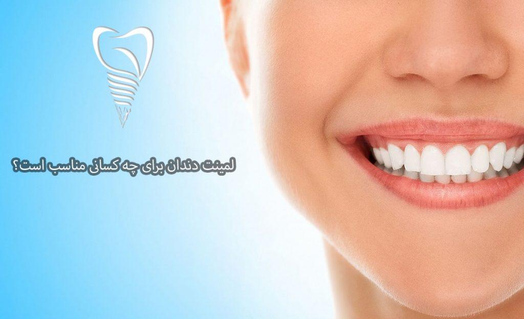 کاربرد لمینت دندان