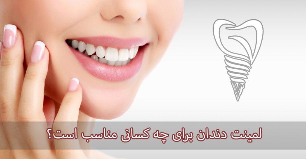 لمینت دندان برای چه کسانی مناسب است؟