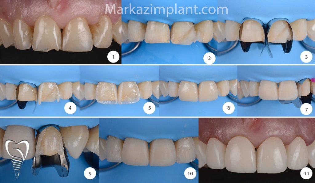 کامپوزیت دندان چگونه انجام میشود
