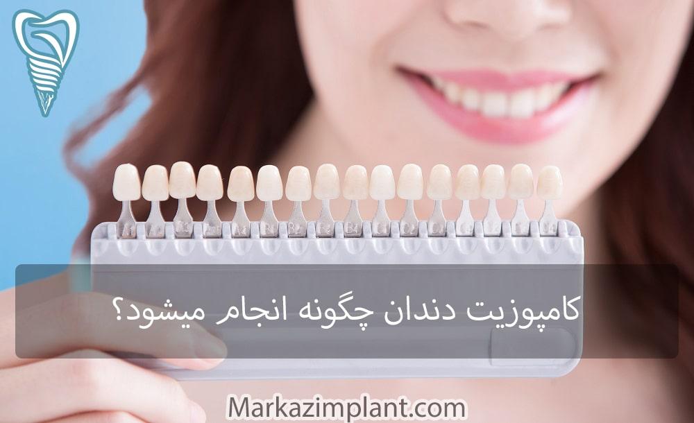 کامپوزیت دندان چگونه است